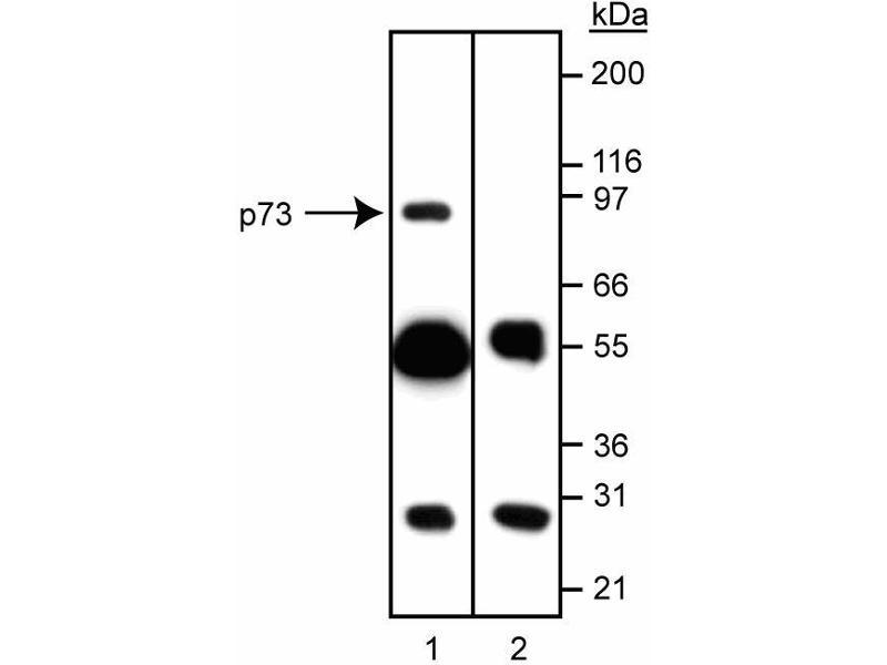 Western Blotting (WB) image for anti-Tumor Protein p73 antibody (Tumor Protein P73) (AA 380-367) (ABIN967628)