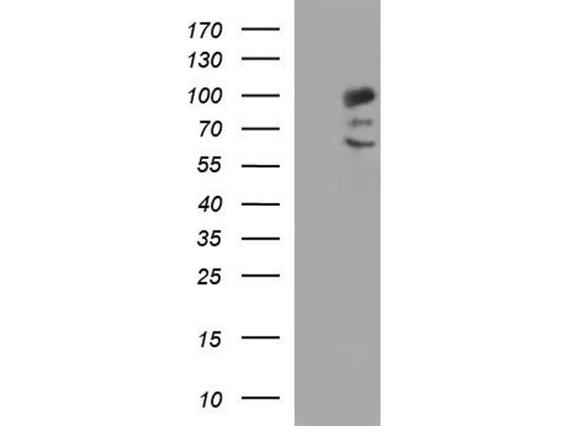 Western Blotting (WB) image for anti-PDCD6IP antibody (Programmed Cell Death 6 Interacting Protein) (ABIN2671799)