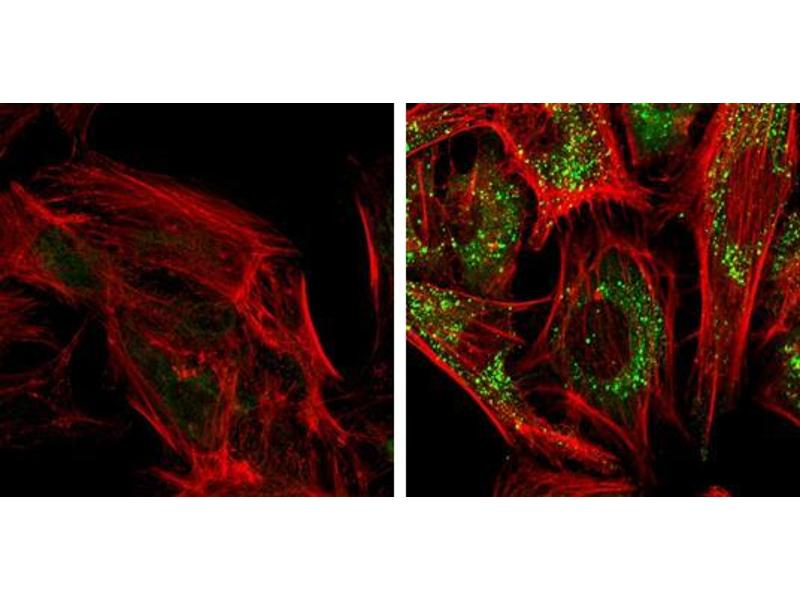 Immunofluorescence (IF) image for anti-SQSTM1 antibody (Sequestosome 1) (Internal Region) (ABIN2854836)