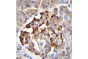 Image no. 2 for anti-Glutamate Decarboxylase 2 (Pancreatic Islets and Brain, 65kDa) (GAD2) (AA 116-145), (Middle Region) antibody (ABIN952422)