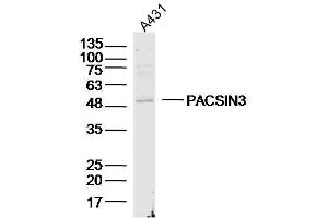 Image no. 1 for anti-Protein Kinase C and Casein Kinase Substrate in Neurons 3 (PACSIN3) antibody (ABIN2178169)