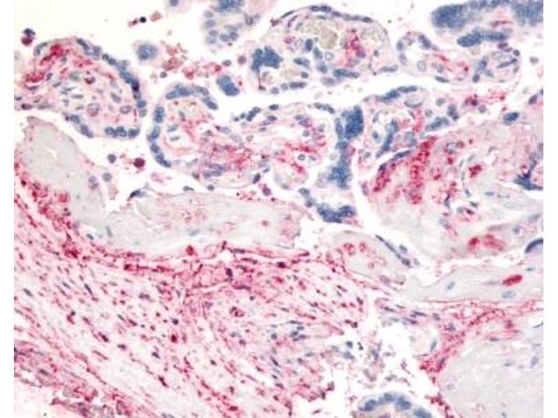Immunohistochemistry (IHC) image for anti-Dipeptidyl-Peptidase 4 (DPP4) antibody (ABIN188903)