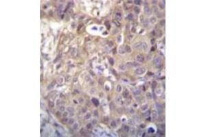 Immunohistochemistry (Paraffin-embedded Sections) (IHC (p)) image for anti-Homeodomain Interacting Protein Kinase 1 (HIPK1) (AA 892-922), (C-Term) antibody (ABIN952740)