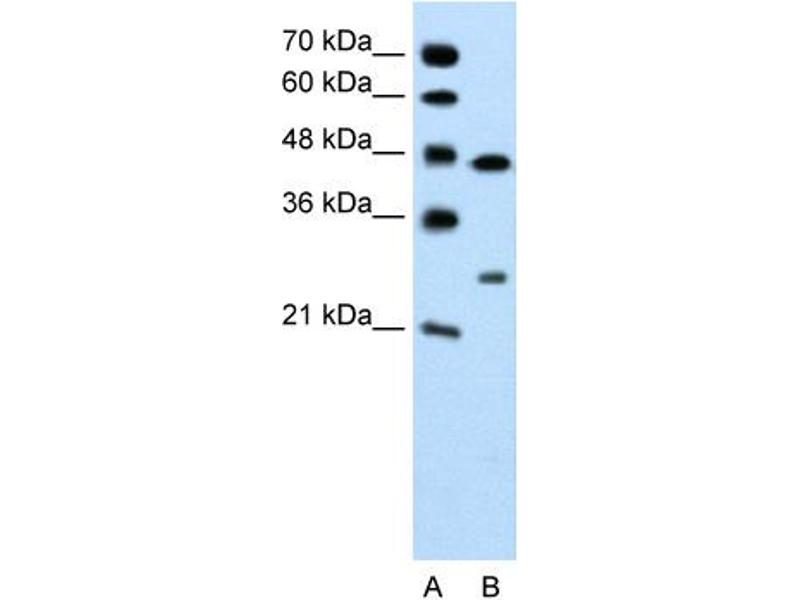 Western Blotting (WB) image for anti-Claudin 18 (CLDN18) (C-Term) antibody (ABIN310149)