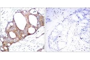 Immunohistochemistry (IHC) image for anti-GSK3 alpha antibody (Glycogen Synthase Kinase 3 alpha) (pSer21) (ABIN1531854)