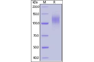 Image no. 2 for SARS-CoV-2 Spike S1 protein (His tag) (ABIN6952427)