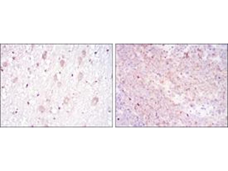 Immunohistochemistry (IHC) image for anti-CD1a Molecule (CD1A) antibody (ABIN1105998)