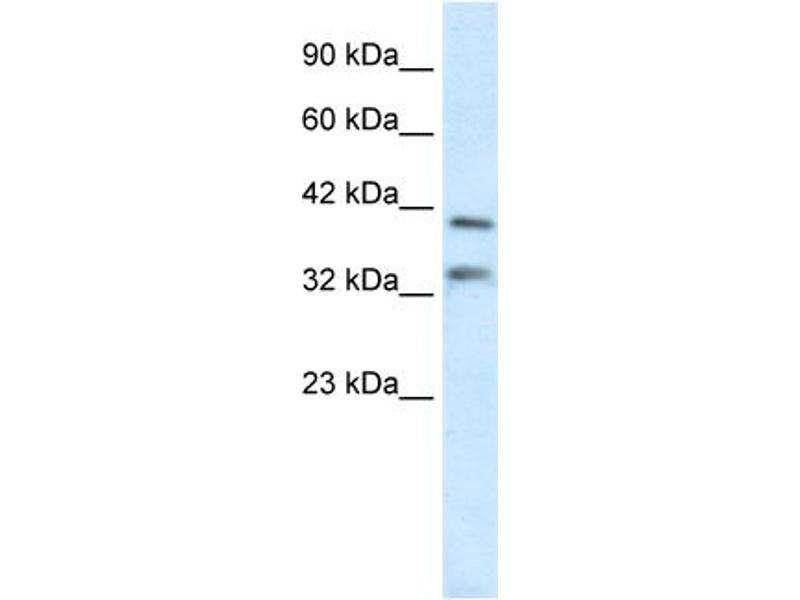 Western Blotting (WB) image for anti-GS Homeobox 2 (GSX2) (N-Term) antibody (ABIN182507)