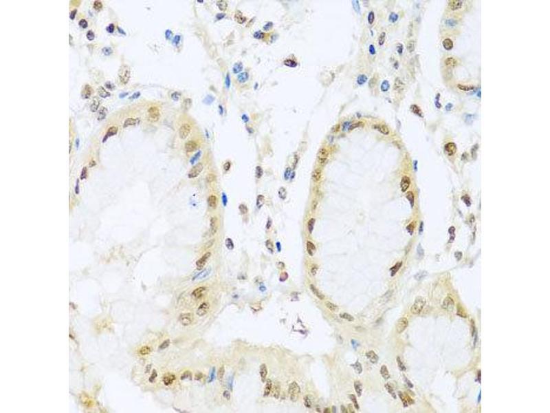 Immunohistochemistry (IHC) image for anti-Progesterone Receptor (PGR) antibody (ABIN1874114)