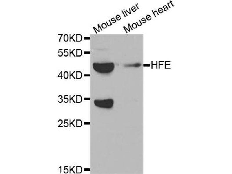 Image no. 1 for anti-Hemochromatosis (HFE) antibody (ABIN6567776)