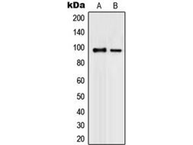 Western Blotting (WB) image for anti-Promyelocytic Leukemia (PML) (N-Term) antibody (ABIN2707709)