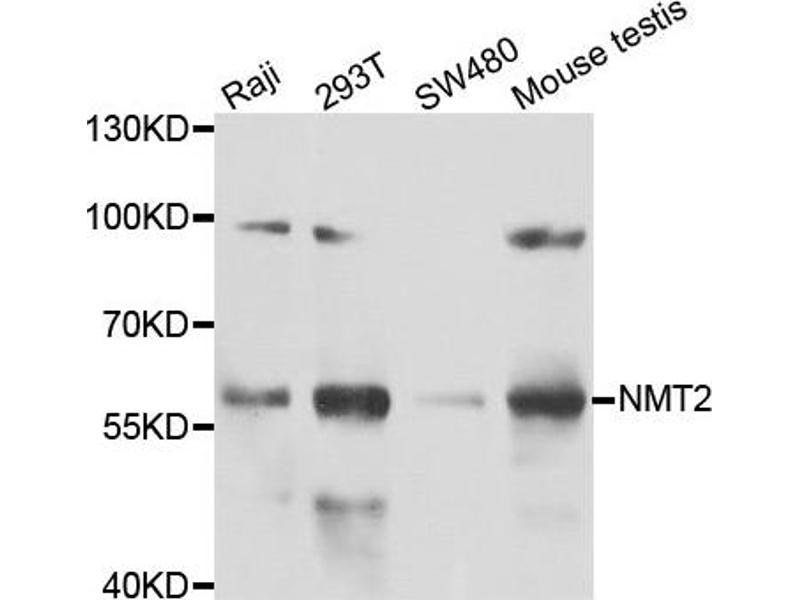 Image no. 1 for anti-N-Myristoyltransferase 2 (NMT2) antibody (ABIN2564168)