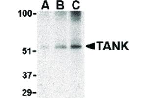 Image no. 1 for anti-TRAF Family Member-Associated NFKB Activator (TANK) (C-Term) antibody (ABIN6656809)