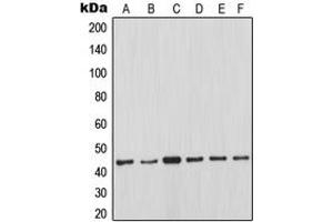 Western Blotting (WB) image for anti-Induced Myeloid Leukemia Cell Differentiation Protein Mcl-1 (MCL1) (Center) antibody (ABIN2706515)
