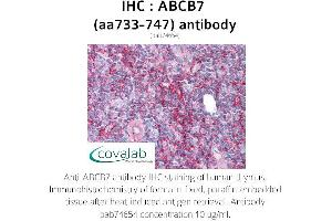 Image no. 1 for anti-ATP-Binding Cassette, Sub-Family B (MDR/TAP), Member 7 (ABCB7) (AA 733-747) antibody (ABIN1731409)