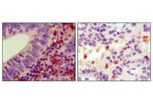 Image no. 2 for anti-Hemopoietic Cell Kinase (HCK) antibody (ABIN969187)