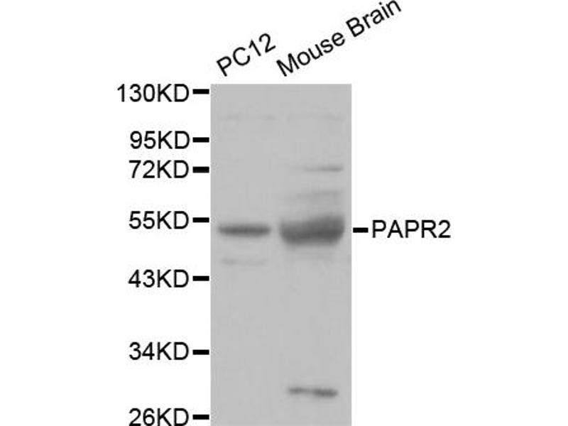 Image no. 2 for anti-E3 Ubiquitin-Protein Ligase Parkin (PRKN) antibody (ABIN6566709)