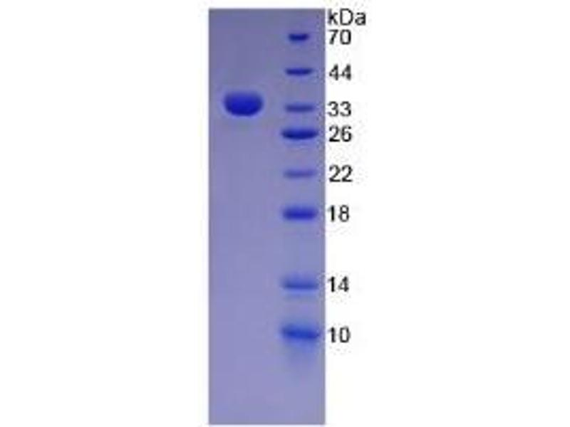 SDS-PAGE (SDS) image for Fibronectin CLIA Kit (ABIN6720530)