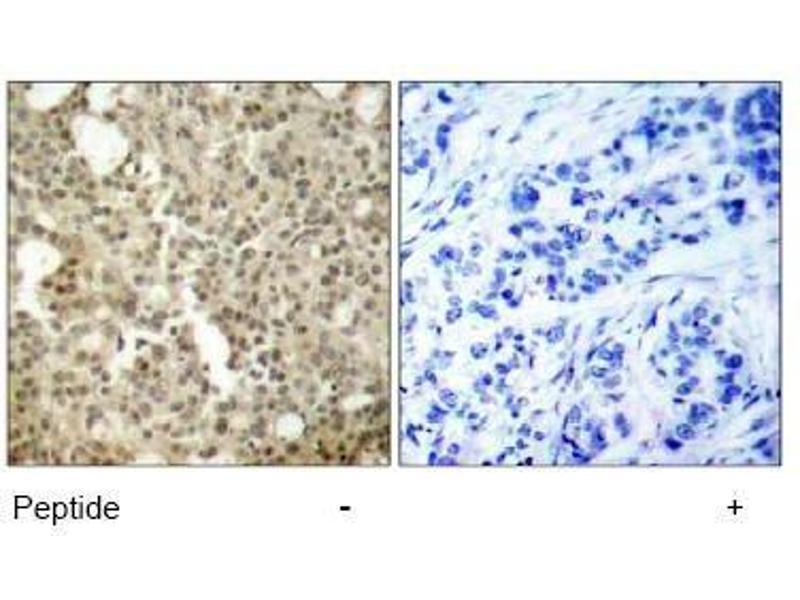 image for anti-PKC delta antibody (Protein Kinase C, delta) (AA 643-647) (ABIN197564)