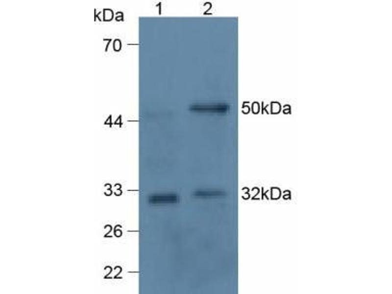 Tumor Necrosis Factor (Ligand) Superfamily, Member 11 (TNFSF11) ELISA Kit (2)