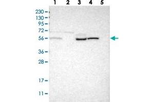 Image no. 1 for anti-Family with Sequence Similarity 38, Member B (FAM38B) antibody (ABIN5585675)