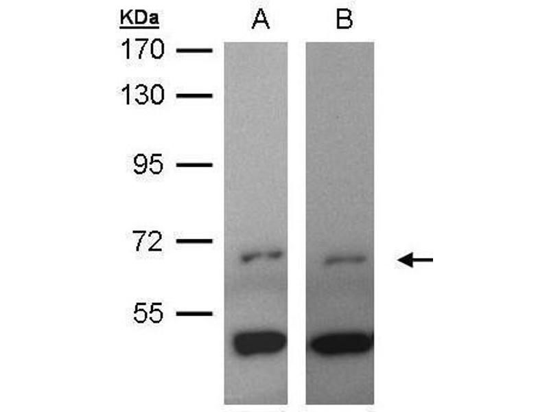 Western Blotting (WB) image for anti-IL2-Inducible T-Cell Kinase (ITK) (C-Term) antibody (ABIN2855946)