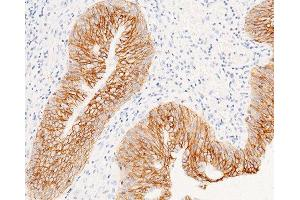 Image no. 4 for anti-Epithelial Cell Adhesion Molecule (EPCAM) (AA 1-265) antibody (ABIN1997259)