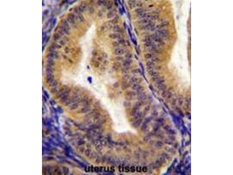 Immunohistochemistry (Paraffin-embedded Sections) (IHC (p)) image for anti-Interleukin 6 Signal Transducer (Gp130, Oncostatin M Receptor) (IL6ST) (AA 878-906), (C-Term) antibody (ABIN951186)