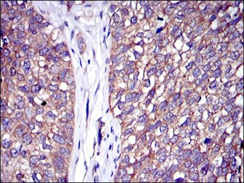 Immunohistochemistry (IHC) image for anti-Cas-Br-M (Murine) Ecotropic Retroviral Transforming Sequence (CBL) antibody (ABIN1105707)