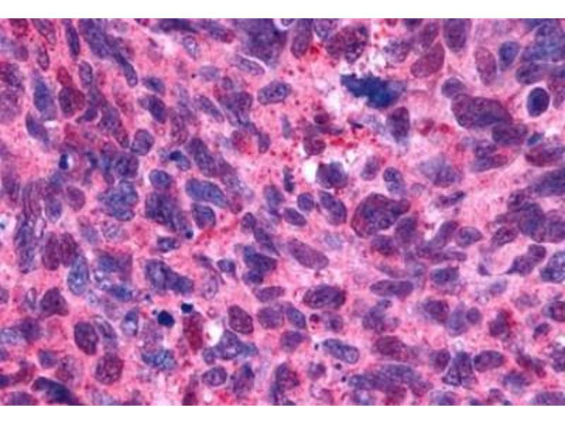 Immunohistochemistry (Paraffin-embedded Sections) (IHC (p)) image for anti-Serotonin Receptor 2B (HTR2B) (2nd Extracellular Domain) antibody (ABIN270524)