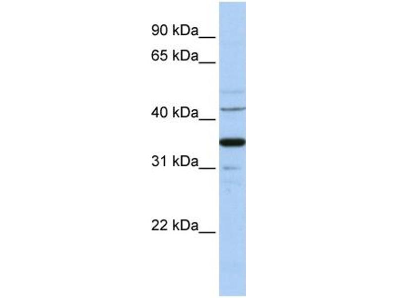 Western Blotting (WB) image for anti-Wingless-Type MMTV Integration Site Family, Member 5A (WNT5A) (Middle Region) antibody (ABIN2779470)
