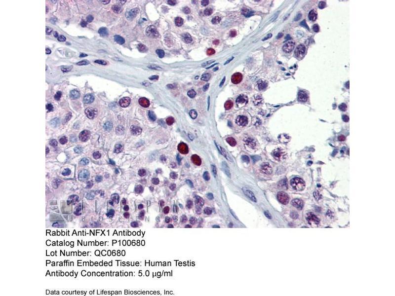 Immunohistochemistry (IHC) image for anti-Nuclear Transcription Factor, X-Box Binding 1 (NFX1) (Middle Region) antibody (ABIN406763)