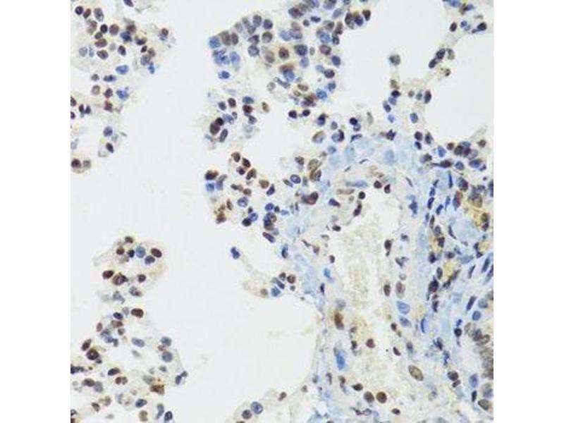 Immunohistochemistry (Paraffin-embedded Sections) (IHC (p)) image for anti-Bromodomain Adjacent To Zinc Finger Domain, 1B (BAZ1B) antibody (ABIN6137461)