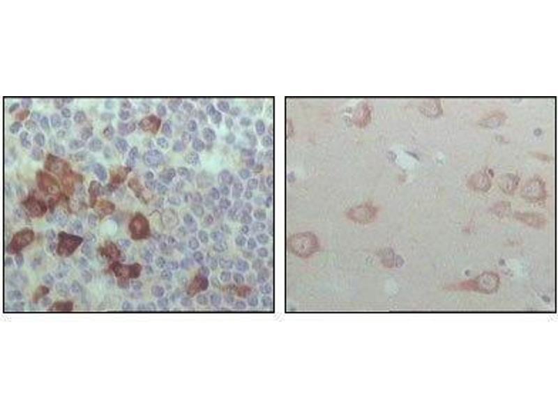 Immunohistochemistry (IHC) image for anti-EPH Receptor B6 (EPHB6) antibody (ABIN449957)