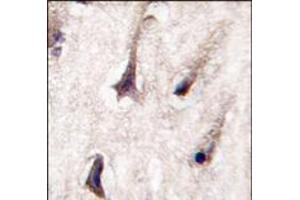 Immunohistochemistry (Paraffin-embedded Sections) (IHC (p)) image for anti-PKC beta antibody (Protein Kinase C, beta) (C-Term) (ABIN359060)