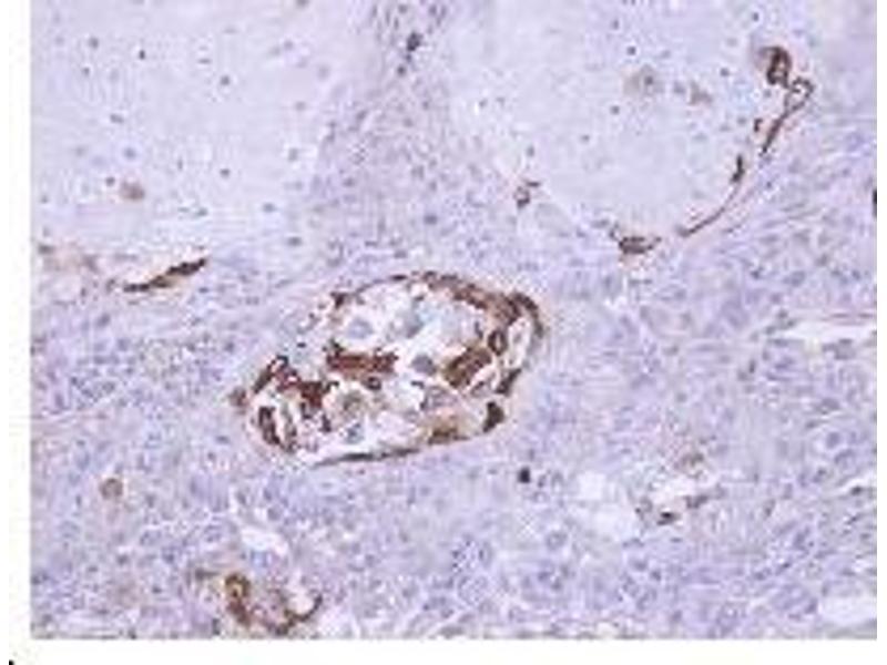 Immunohistochemistry (Paraffin-embedded Sections) (IHC (p)) image for anti-SOCS5 antibody (Suppressor of Cytokine Signaling 5) (AA 1-11) (ABIN488053)