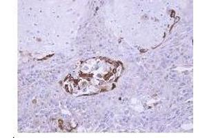 Image no. 1 for anti-Suppressor of Cytokine Signaling 5 (SOCS5) (AA 1-11), (N-Term) antibody (ABIN488053)