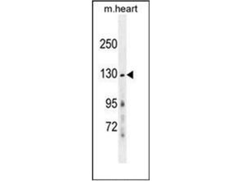 Western Blotting (WB) image for anti-NMDAR2A antibody (Glutamate Receptor, Ionotropic, N-Methyl D-Aspartate 2a) (AA 1064-1092) (ABIN953720)