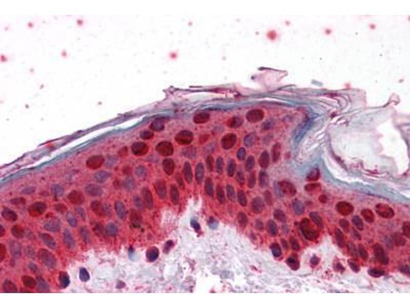 Image no. 2 for anti-Homeobox B7 (HOXB7) (AA 55-121) antibody (ABIN574282)