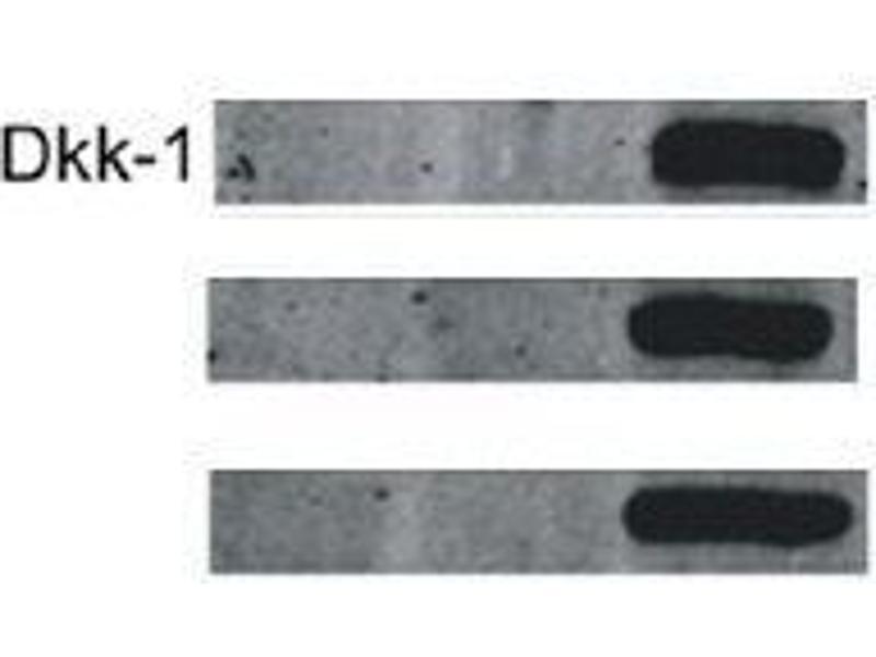 Western Blotting (WB) image for anti-DKK1 antibody (Dickkopf Homolog 1 (Xenopus Laevis)) (AA 207-247) (ABIN678158)