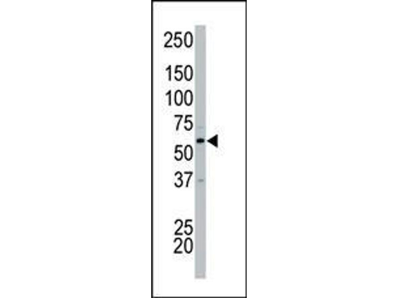 Western Blotting (WB) image for anti-Cyclin-Dependent Kinase 17 (CDK17) (N-Term) antibody (ABIN359702)