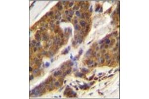 Immunohistochemistry (Paraffin-embedded Sections) (IHC (p)) image for anti-Complement Factor D (CFD) (AA 75-107), (N-Term) antibody (ABIN951645)