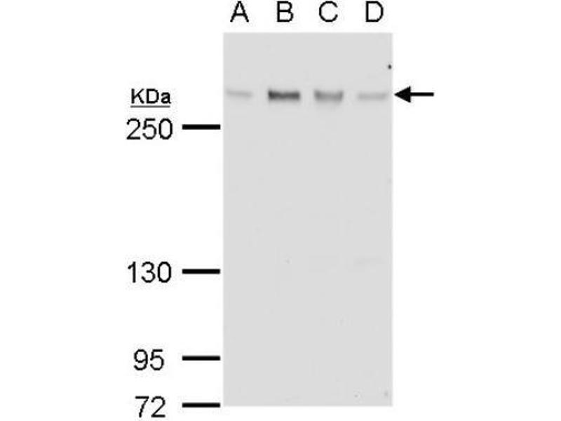 Western Blotting (WB) image for anti-Ataxia Telangiectasia Mutated (ATM) (full length) antibody (ABIN151775)