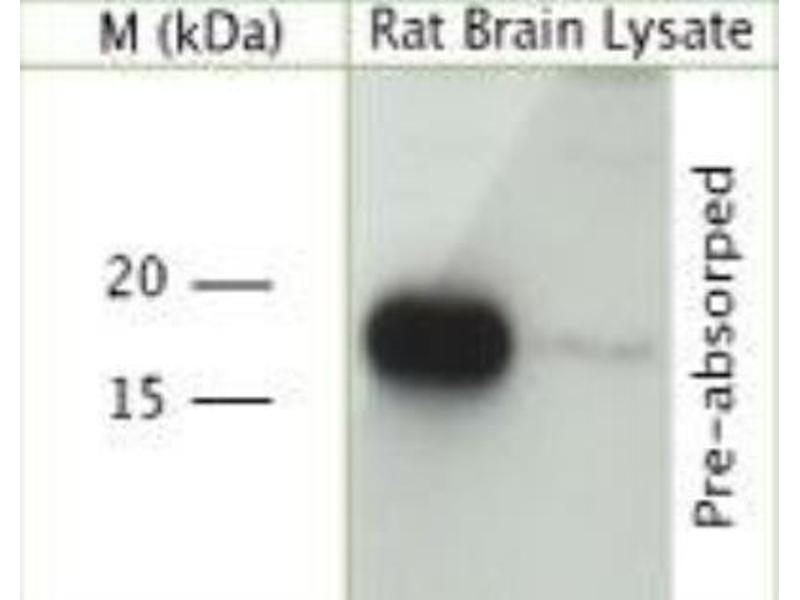 Western Blotting (WB) image for anti-Vesicle-Associated Membrane Protein 2 (Synaptobrevin 2) (VAMP2) antibody (ABIN407569)
