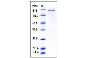 Image no. 1 for Calcium/calmodulin-Dependent Protein Kinase IV (CAMK4) (AA 1-473) protein (GST tag) (ABIN2003189)