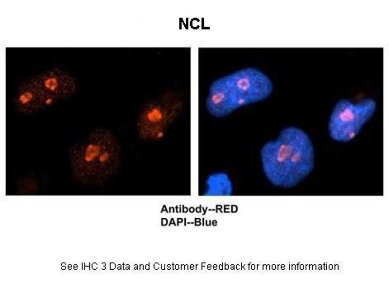 Immunohistochemistry (IHC) image for anti-Nucleolin (NCL) (C-Term) antibody (ABIN2778936)