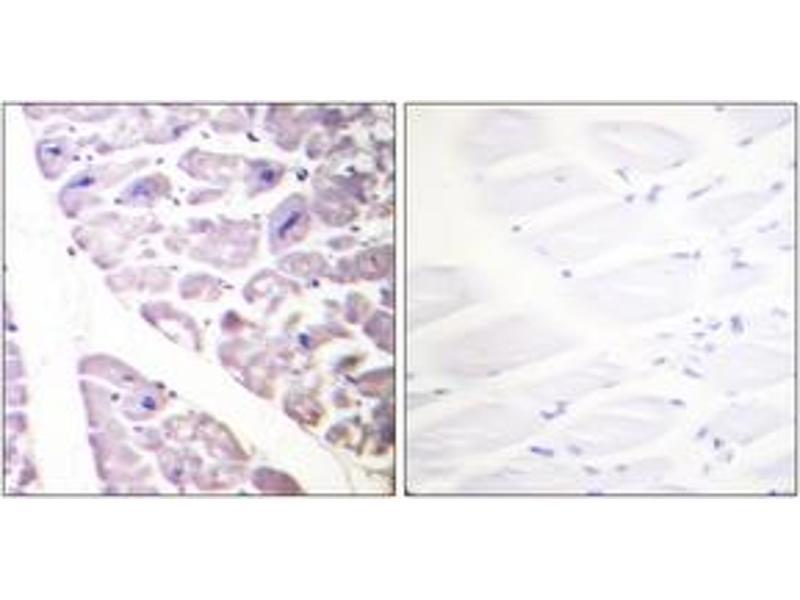 Immunohistochemistry (IHC) image for anti-conserved Helix-Loop-Helix Ubiquitous Kinase (CHUK) (AA 151-200), (pSer176) antibody (ABIN1531285)