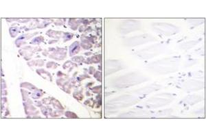 Immunohistochemistry (IHC) image for anti-CHUK antibody (conserved Helix-Loop-Helix Ubiquitous Kinase) (pSer176) (ABIN1531285)
