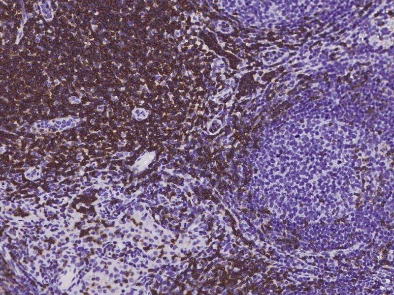Immunohistochemistry (Paraffin-embedded Sections) (IHC (p)) image for anti-CD3E antibody (CD3e Molecule, epsilon (CD3-TCR Complex)) (ABIN2104935)