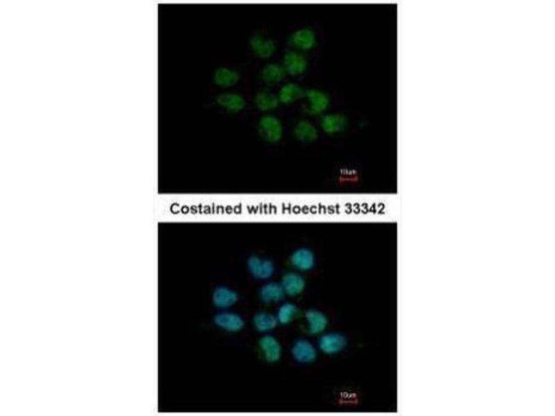 Immunofluorescence (IF) image for anti-AKT antibody (V-Akt Murine Thymoma Viral Oncogene Homolog 1) (Center) (ABIN2854922)